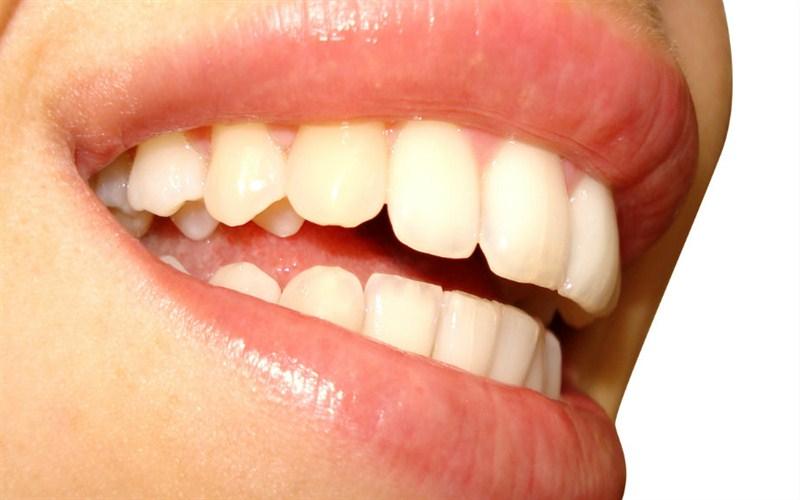 Poliranje zuba sta je to